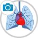 thoracoscopy icon