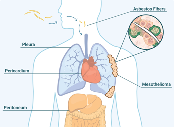 asbestos fibers injested in the body with mesothelioma tumors forming in the lining around the lungs