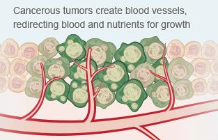 tumors image