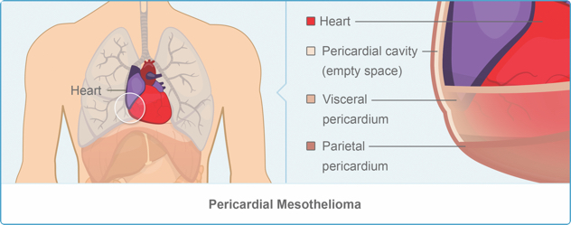Image of Pericardiectomy for Tablet Devices