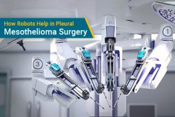 robot used for pleural mesothelioma surgery