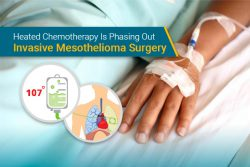 using heated chemotherapy for pleural mesothelioma