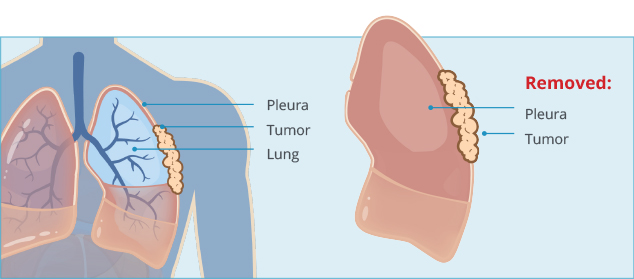 pleurectomy with decortication for pleural mesothelioma
