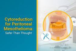 cytorediction for peritoneal mesothelioma