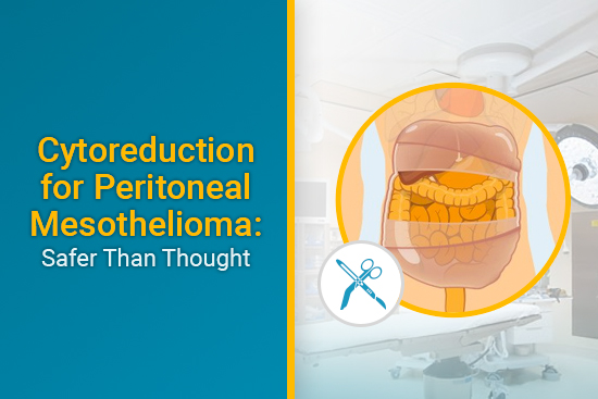 Safety Of Cytoreduction For Peritoneal Mesothelioma Mesothelioma Guide