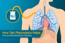 talc pleurodesis for mesothelioma