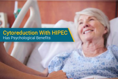peritoneal mesothelioma patient undergoes cytoreduction surgery with hipec