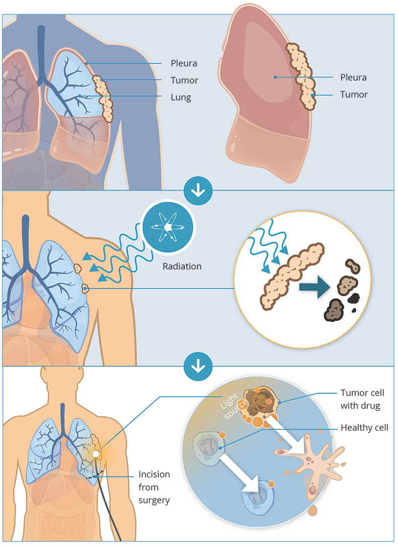 how radiation works for pleural mesothelioma