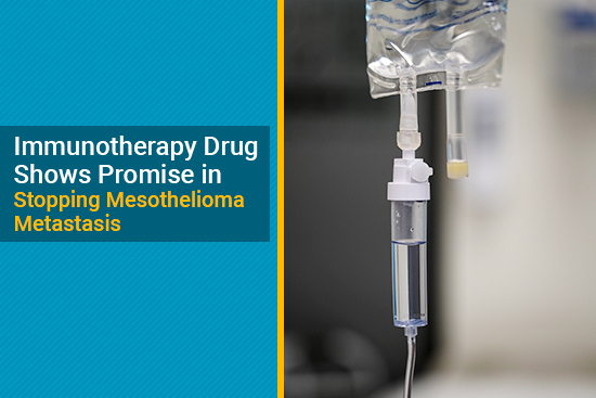 Immunotherapy Drug Anetumab Ravtansine Shows Promise In Stopping Mesothelioma