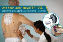 Mesothelioma patient gets Optune Lua NovoTTF device