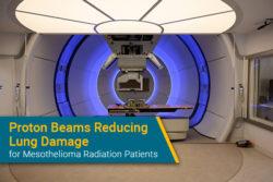 proton radiation therapy for mesothelioma in New York Proton Center