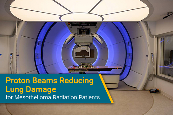 proton radiation therapy for mesothelioma in New York Proton Center