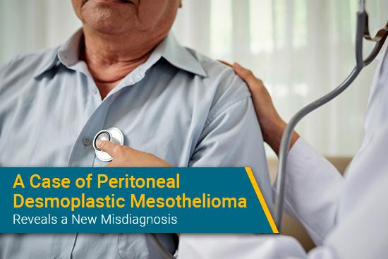 desmoplastic peritoneal mesothelioma case