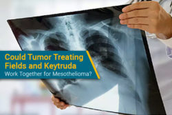 Keytruda and NovoTTF100L Optune Lua device for mesothelioma study