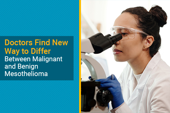 pathologist examining tissue samples for mesothelioma biomarkers