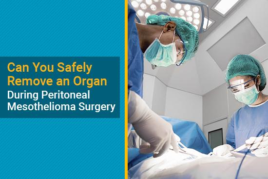 peritoneal mesothelioma surgery removing an organ