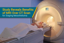 patient gets MRI for mesothelioma testing