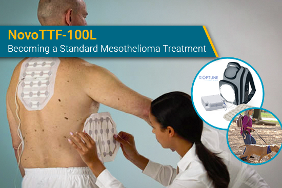 Optune Lua NovoTTF-100L for mesothelioma
