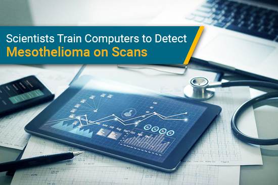 AI computers trained to detect mesothelioma on imaging scans