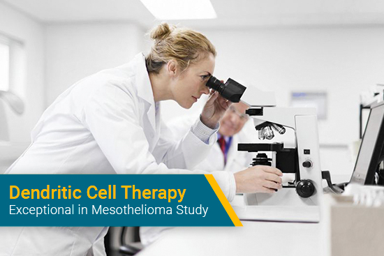 researching dendritic cell therapy for mesothelioma