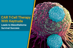 CAR T-cell therapy for mesothelioma survival